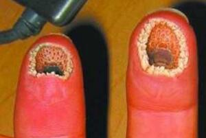 超恶心的手指图片:空手指(手上全是洞密集症慎入)